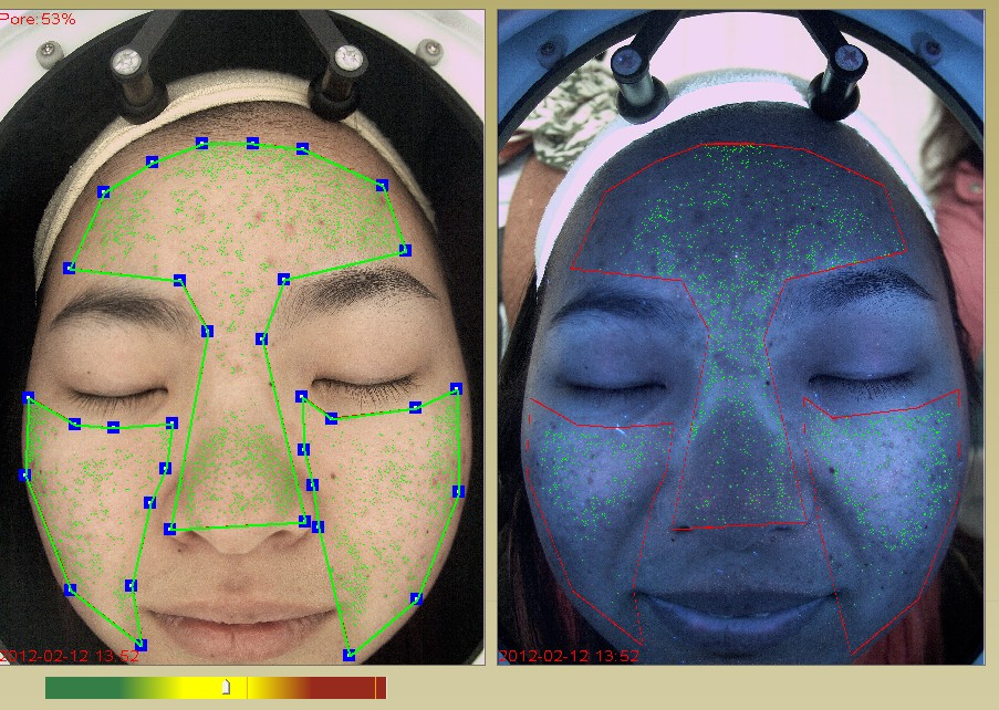 pore-and-uv-acne